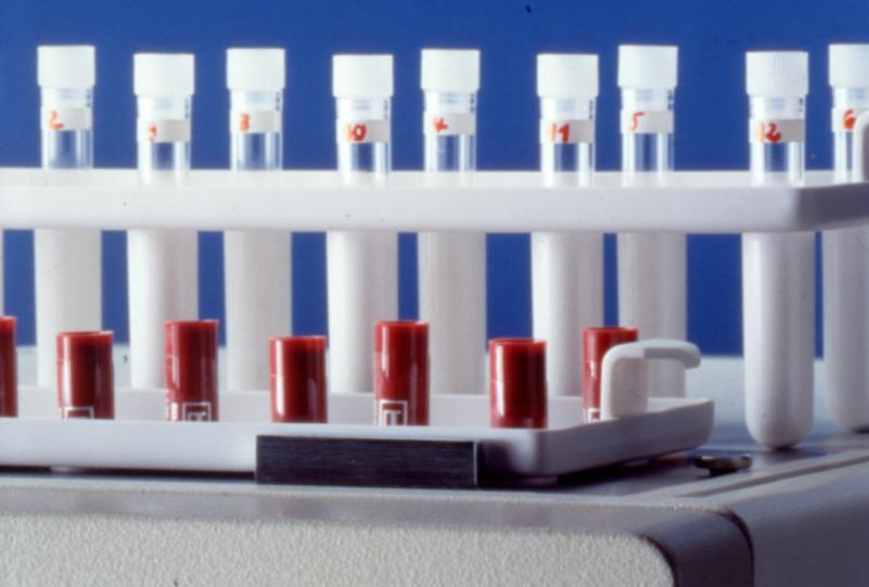 Multi Crystal LB 2111 is a instrument optimized for IRMA and RIA immunoassays based on gamma-emitting isotopes like 125I, 57Co, 59Fe, 51Cr, 99Tc.